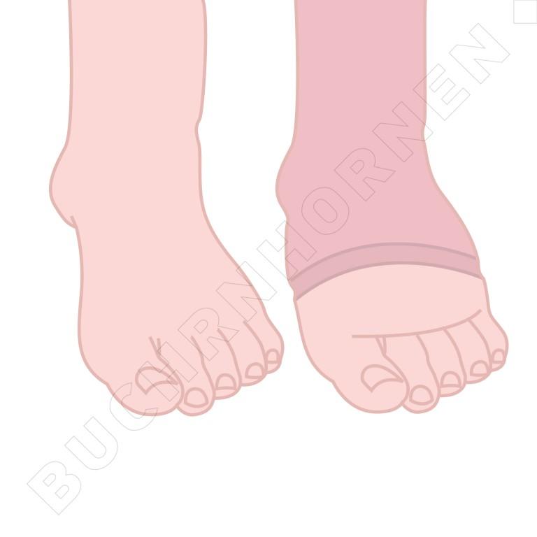 Oedeem h t voet en beweegcenter buchrnhornen for Behandeling oedeem